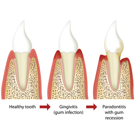Stages of periodontitis medical vector illustration white background Illustration
