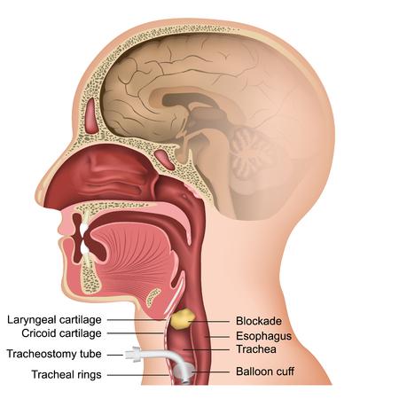 Ilustración de vector médico de traqueotomía sobre fondo blanco