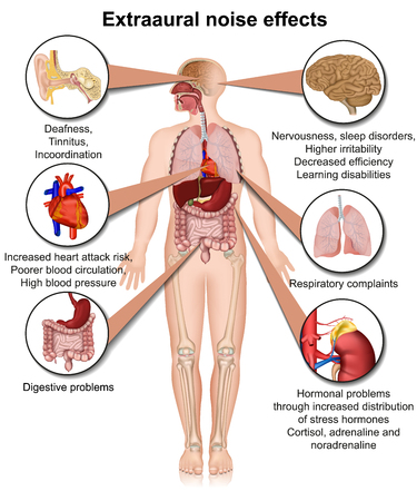 Extraaural health effects of chronic noise exposure medical vector illustration