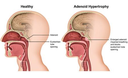 Adenoïde hypertrofie medische vectorillustratie op witte achtergrond