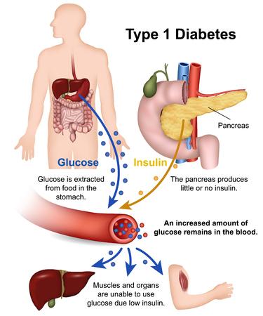 Ilustración de vector médico de diabetes tipo 1 con descripción en inglés Ilustración de vector