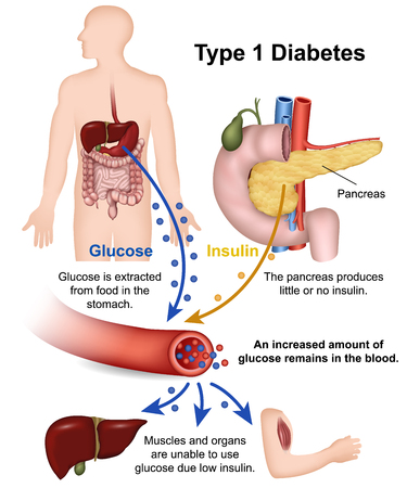 Type 1 diabetes medical vector illustration with english description Illustration