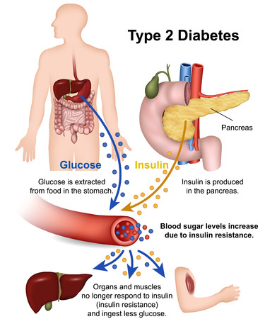 Type 2 diabetes medical vector illustration with english description