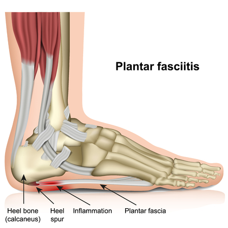 Plantar fasciitis 3d medical vector illustration on white background