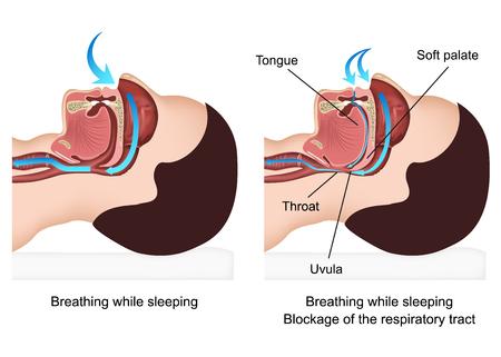 Snoring medical illustration with description on white background Illustration