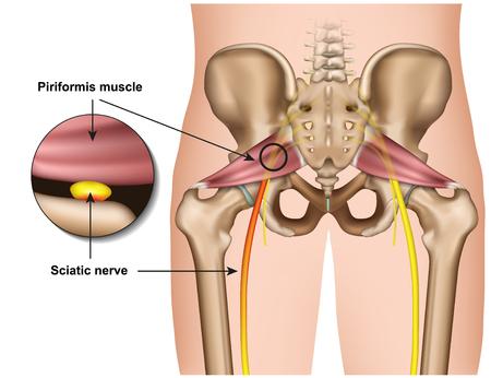 Síndrome piriforme 3d ilustración vectorial médica sobre fondo blanco.