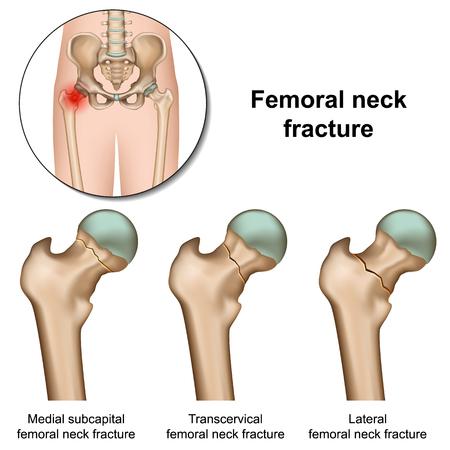 Ilustración de vector médico de fracturas de cuello femoral sobre fondo blanco