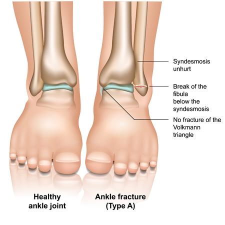 Fractura de la articulación del tobillo tipo A médica ilustración vectorial sobre fondo blanco.