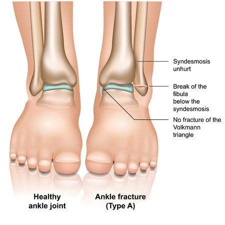 Ankle joint fracture type A medical vector illustration on white background