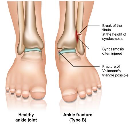 Frattura dell'articolazione della caviglia tipo B medico illustrazione vettoriale su sfondo bianco white Vettoriali