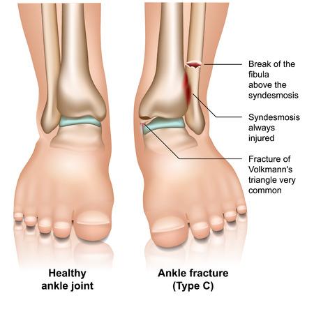 Ankle joint fracture type c medical vector illustration on white background Illustration