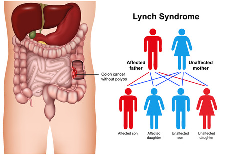Lynch syndrome disease 3d medical vector illustration on white background