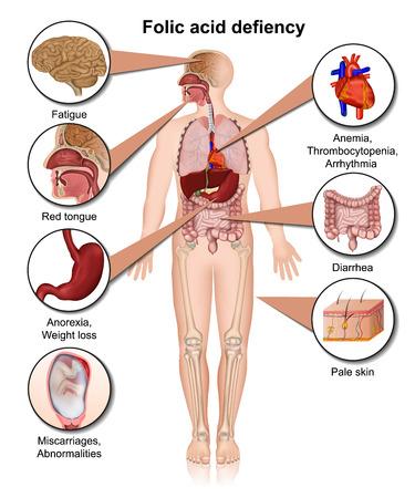 Folic acid defiency 3d medical vector illustration infographic Illustration