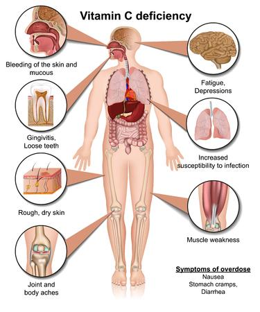 Vitamin C deficiency 3d medical vector illustration on white background Illustration