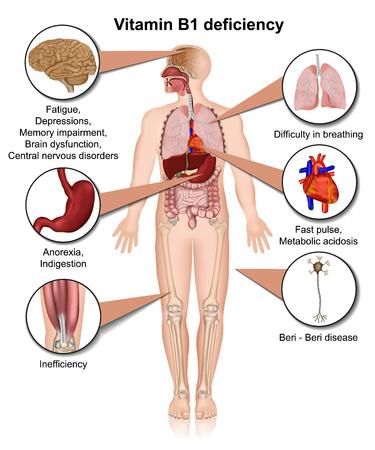 Vitamin B1 deficiency 3d medical illustration infographic on white background thiamine Illustration