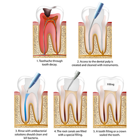 Caries destroyed with a tooth or a tooth filling vector illustration process
