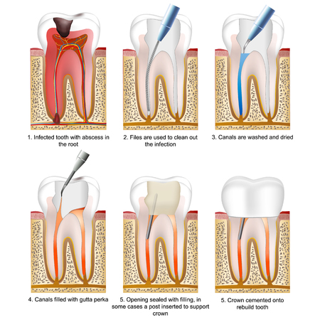 Root canal treatment medical illustration on white background with description