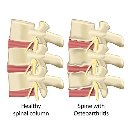 Spine with osteoarthritis, spinal column medical vector illustration isolated on white background