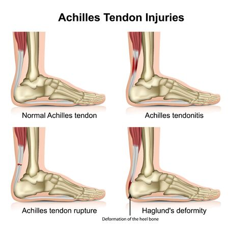 Achilles tendon injures medical illustration isolated on white background with english description