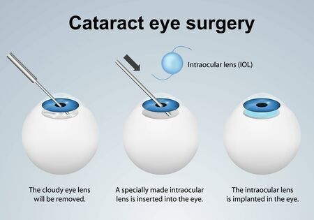 Cataract eye surgery process medical illustration isolated on gray background Ilustracja