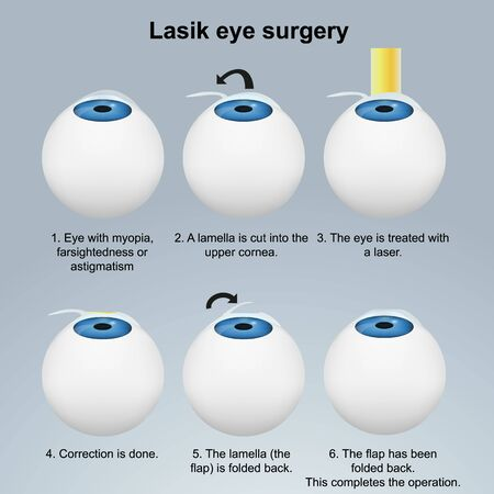 Lasik eye surgery medical illustration isolated on white background Illustration
