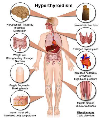 Hyperthyroidism medical illustration isolated on white background infographic