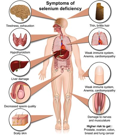 Selenium deficiency medical illustration isolated on white background infographic Ilustração