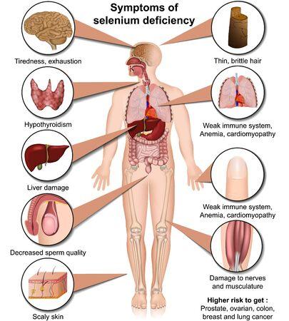 Selenmangel medizinische Illustration isoliert auf weißem Hintergrund Infografik Vektorgrafik