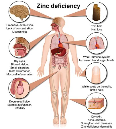 Zinc deficiency 3d medical vector illustration isolated on white background infographic