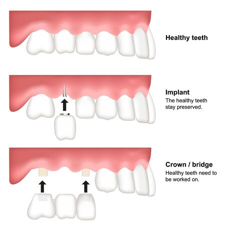 Tooth replacement dental medical vector illustration isolated on white background Çizim