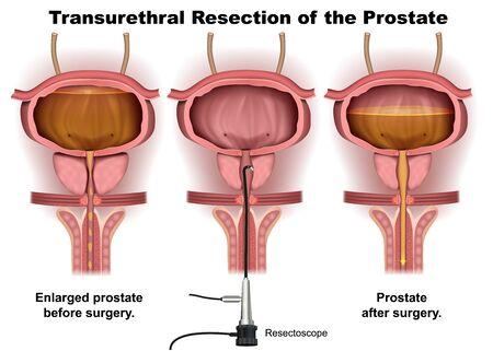 Transurethrale Resektion Vektor Infografik