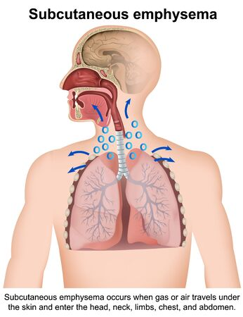 Subcutaneous emphysema medical with english description on white