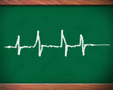 Blackboard pulse. photo