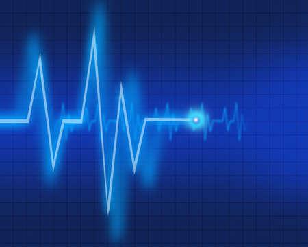 Electrocardiogram Stock Photo - 12915424