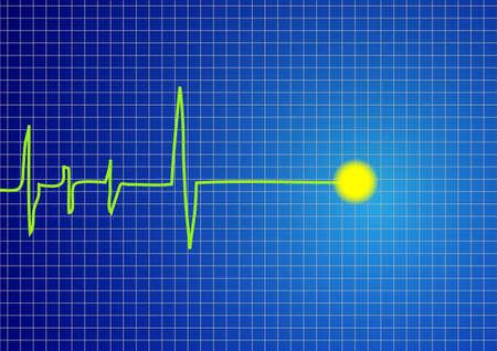 A pulse signal vector Stock Vector - 13789775