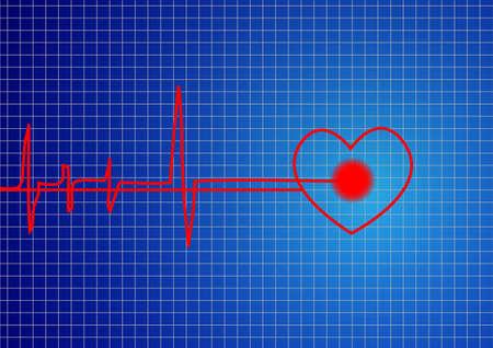 cardiac care: A pulse signal form the backbone vector