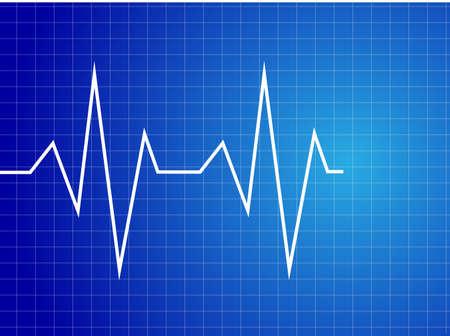 monitoreo: El corazón late Resumen ilustración de electrocardiograma -