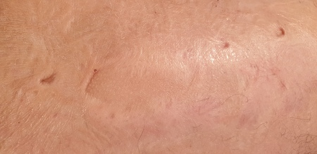 The Burns on the human body.Scar from burns on the body. Wounds on the body.