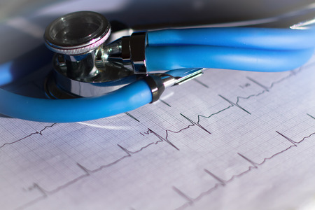 technology tool: EKG and stethoscope with bright vignetting Stock Photo