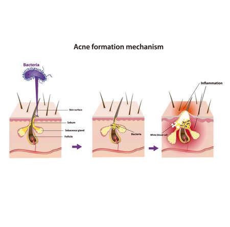 Akne Bildungsmechanismus Vektorgrafik