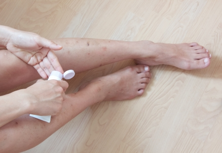 rash: cosmetic allergy skin leg woman