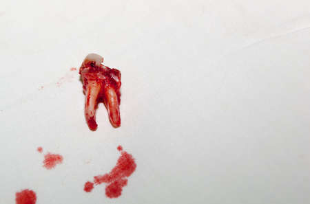 dental calculus: Detail  of a freshly extracted cracked molar