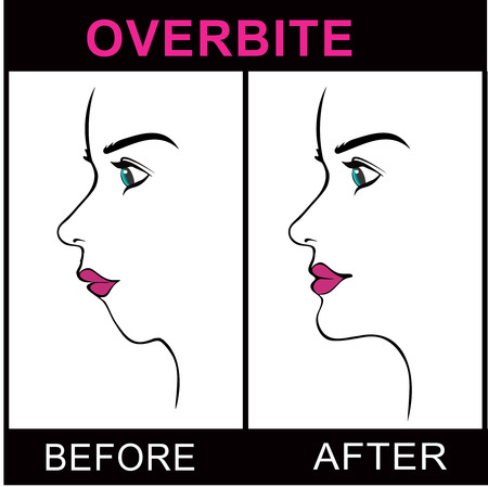 overbite: Overbite Before and After surgery