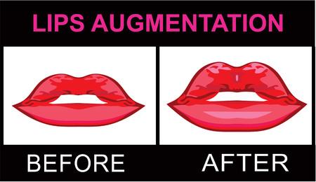 Lippenvergrößerung Standard-Bild - 60904401
