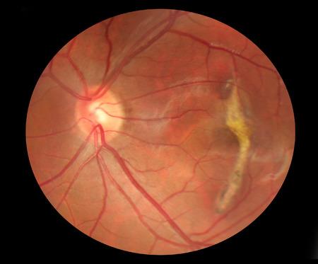 scarring: Fundus foto di cicatrici maculare con i vasi sanguigni normali e nervo ottico