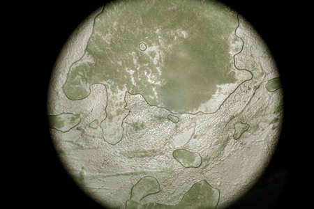 Biopsia: Vista microscópica de un tejido