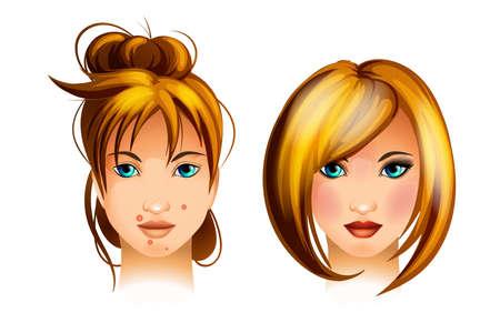 skin infections: Adolescente con una espinilla en la cara. Problema del acn� Vectores