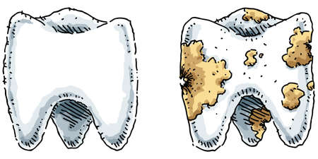 きれいで、健康大臼歯空洞汚い大臼歯の横にあります。