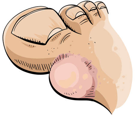 big toe: A cartoon foot with a big blister  Stock Photo