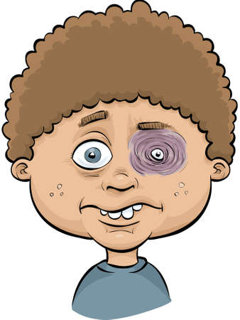 痛み、腫れの黒眼を持つ漫画少年。